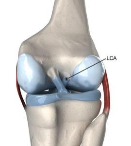 ligamento cruzado anterior LCA